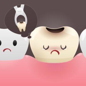 Clínica Dental Sorias - Cuando un diente comprometido es una amenaza y beneficios de la colocación de implantes - Blog - Extraer diente con caries