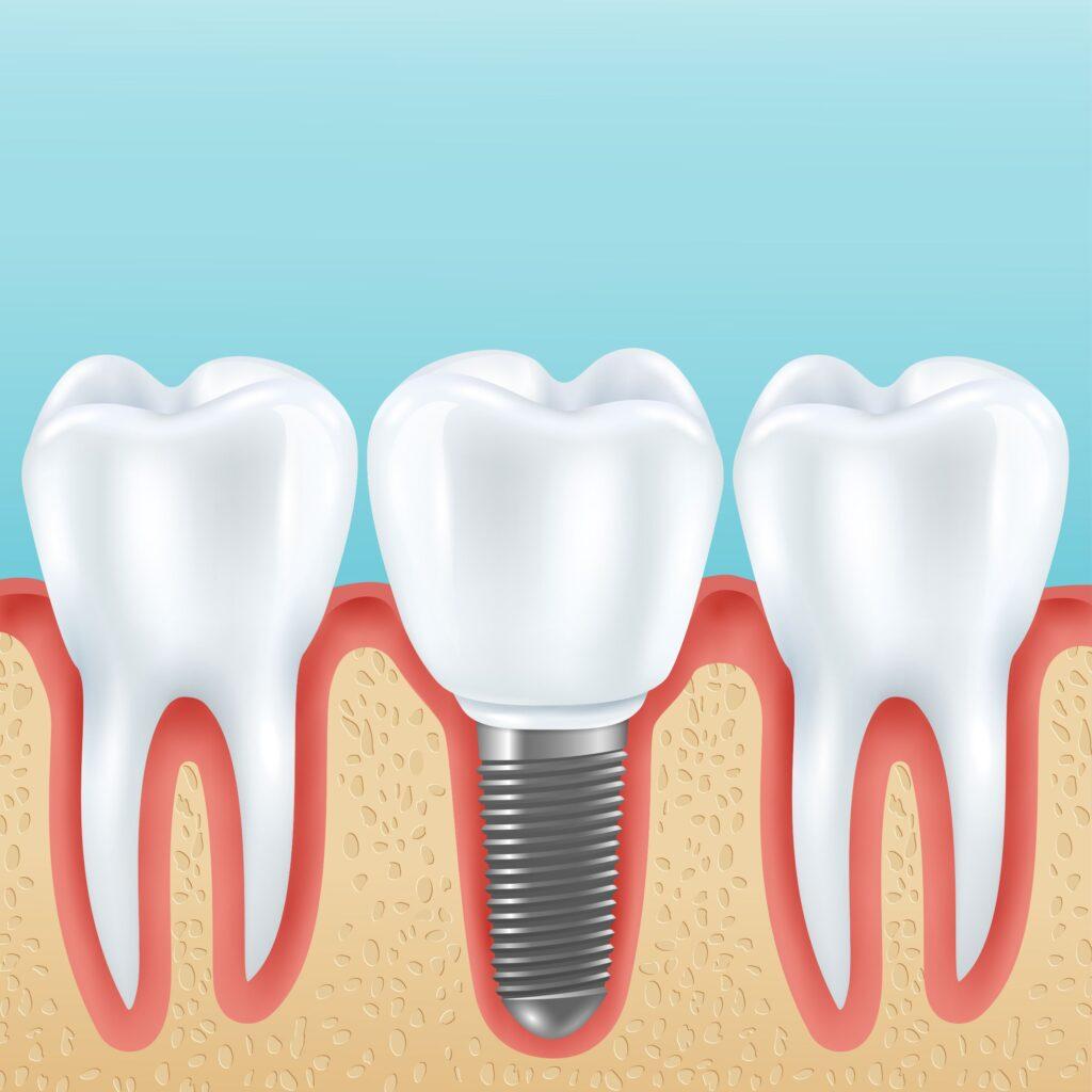 Clínica Dental Sorias - Blog - ¿Qué es un implante dental y por qué es tan popular? - Implante