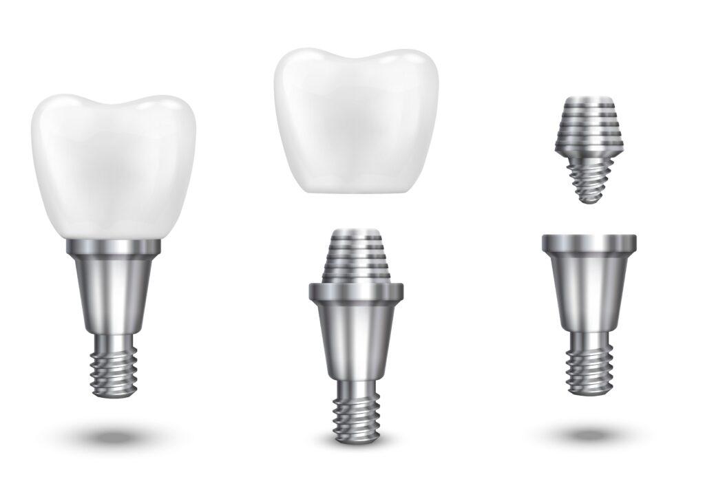 Clínica Dental Sorias - Blog - ¿Qué es un implante dental y por qué es tan popular? - Proceso implante