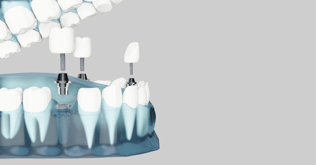 Clínica Dental Sorias - Blog - ¿Qué es un implante dental y por qué es tan popular? - Doble implante