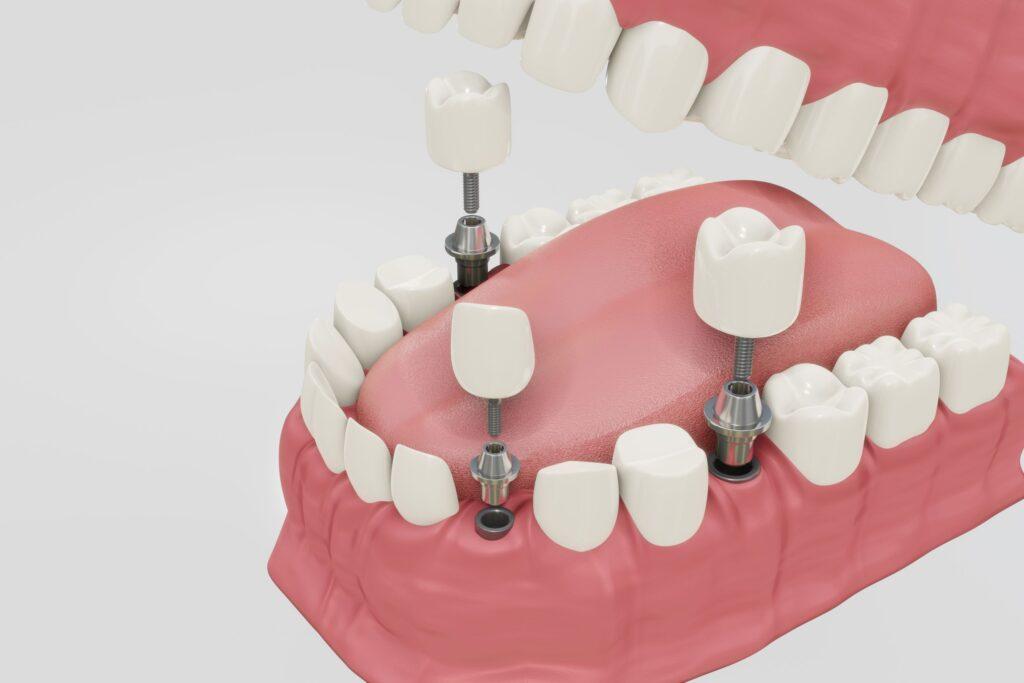 Clínica Dental Sorias - Blog - ¿Qué es un implante dental y por qué es tan popular? - Triple implante