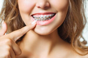 brackets-blog-clinica-soria