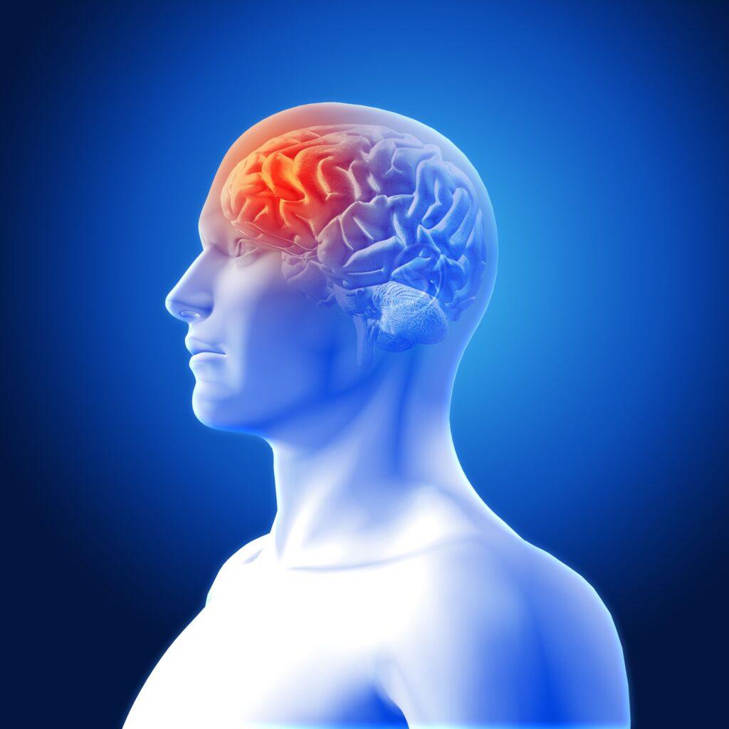Clínica Dental Sorias - Blog - La posible relación entre el dolor de cabeza y el dolor de muelas - Dolor de cabeza en vista de cerebro