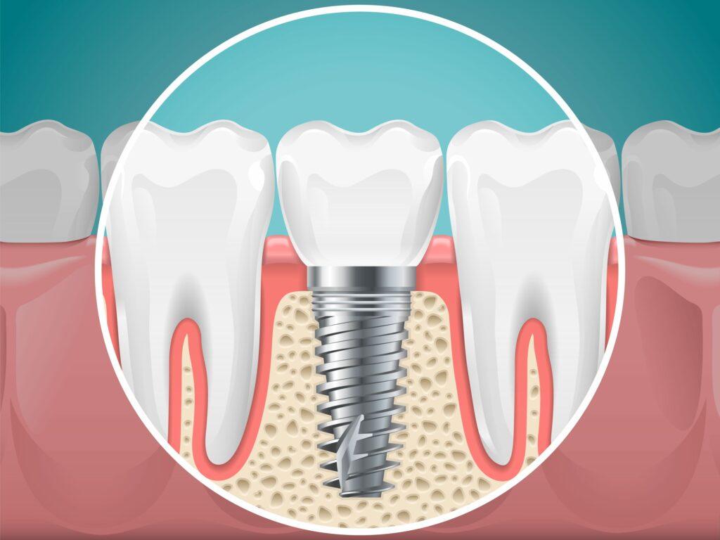 Clínica Dental Sorias - Blog - El reto de la apertura de la línea de incisión - Representación Implante