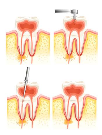 tratamiento-endodoncia-blog-clinica-soria