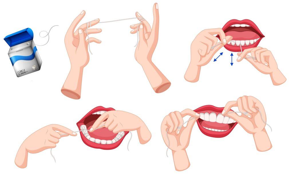 Clínica Dental Sorias - Blog - El uso del hilo dental - Proceso de limpieza con hilo dental