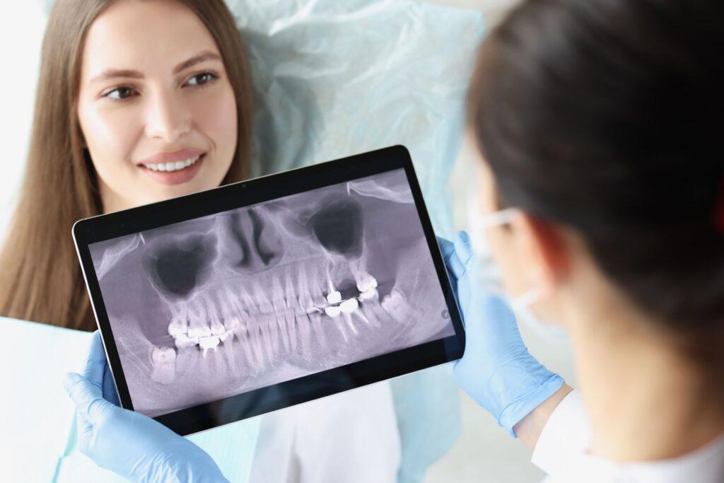 Clínica Dental Sorias - Blog - Oclusión dental - Radiografía dentadura