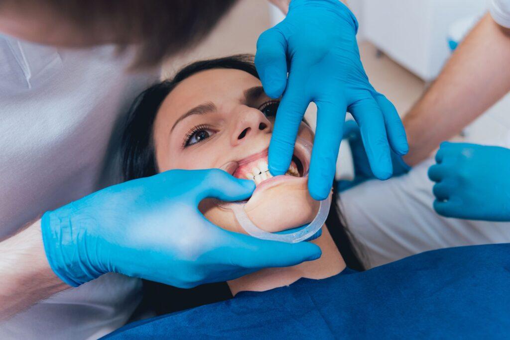 Clínica Dental Sorias - Blog - Oclusión dental - Análisis mordedura