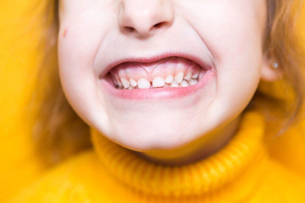 Clínica Dental Sorias - Blog - Qué podemos hacer para mantener nuestras encías sanas - Encías niña