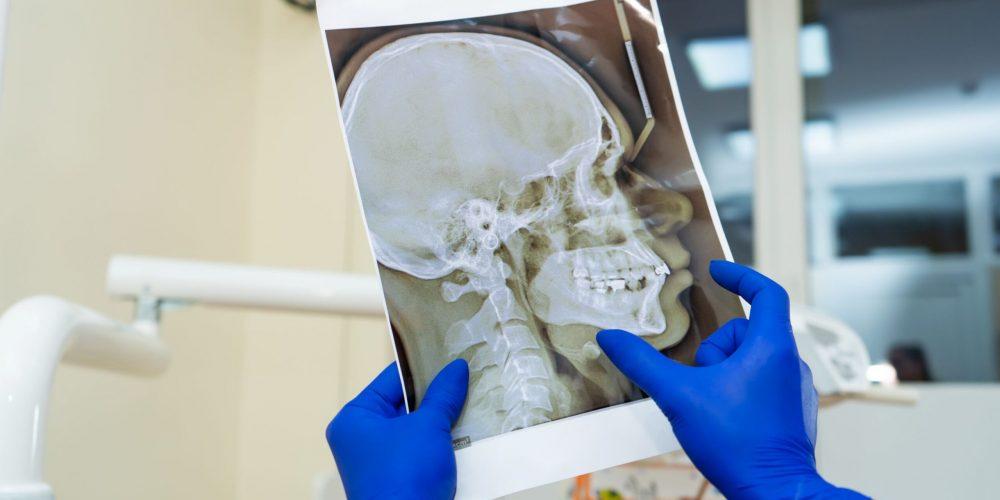 Implantes dentales con una severa pérdida de hueso