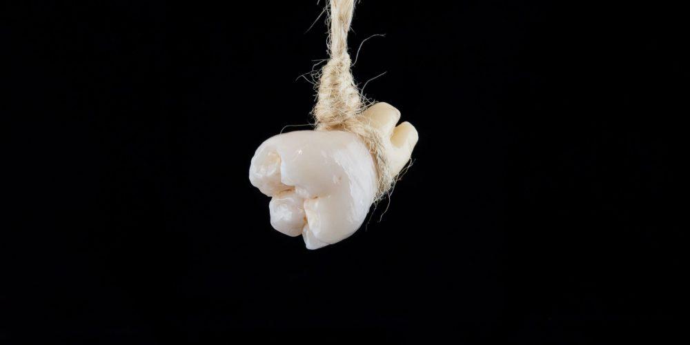 Cuando un diente comprometido es una amenaza y beneficios de la colocación de implantes