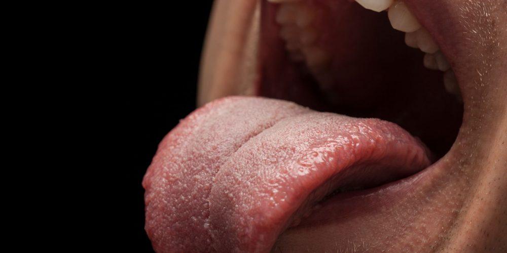Síndrome de la boca seca o xerostomía