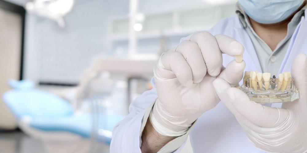 Implantes dentales fallidos