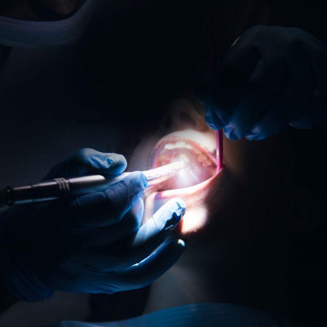 El reto de la apertura de la línea de incisión