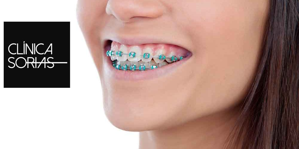 Cuidado de la ortodoncia en confinamiento