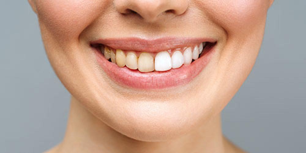 Manchas en tus dientes